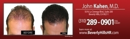 Beverly Hills Hair Restoration